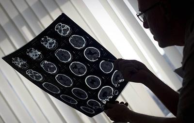 Смертность от онкологии в России не изменилась, несмотря на рост заболеваемости
