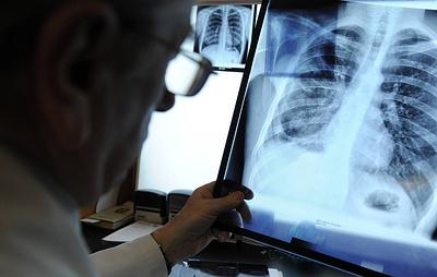 Экспресс-тест для выявления вируса новой пневмонии может появиться в РФ в течение месяца