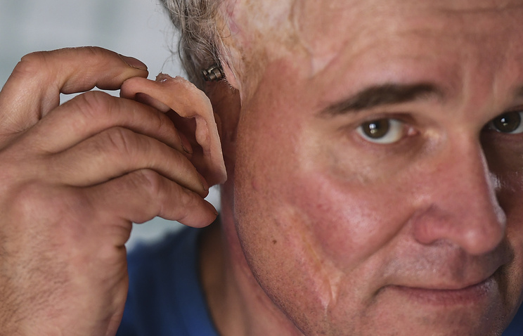 Александр Иванов — пациент клиники Сергея Николаенко — во время установки протеза